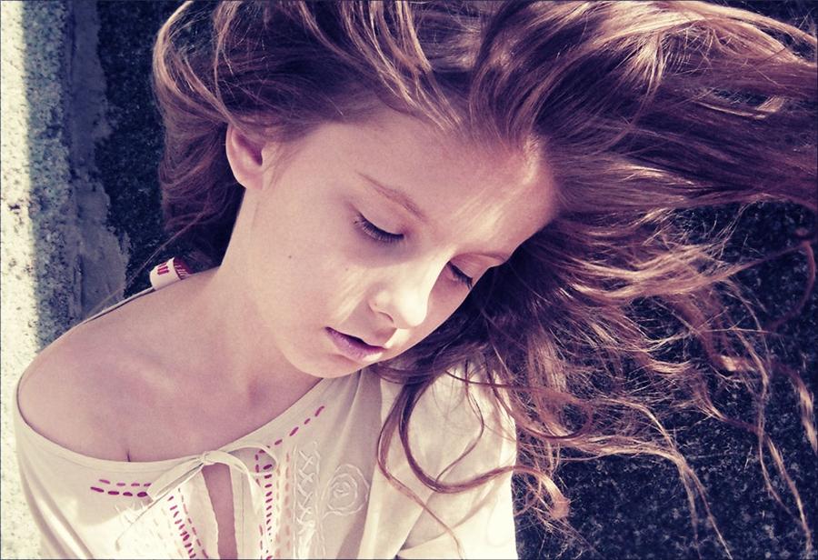 Себорея выпадение волос схема